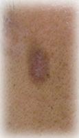 炎症性色素沈着イメージ | 男のシミを消す方法