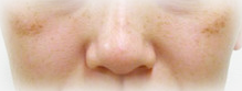肝斑 | 男のシミを消す方法