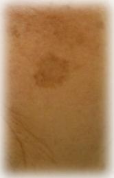 紫外線が蓄積して出来る、老人性色素班 | 男のシミを消す方法